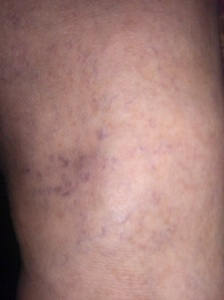 The top of my left foot.  Any brown discoloration is a side effect of sclerotherapy called staining.