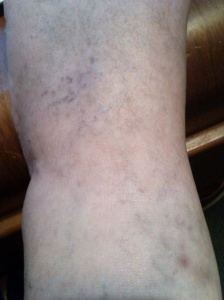 This is the top of my left foot and the very bottom of my shin.
